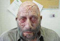 Sid Haig versione zombi